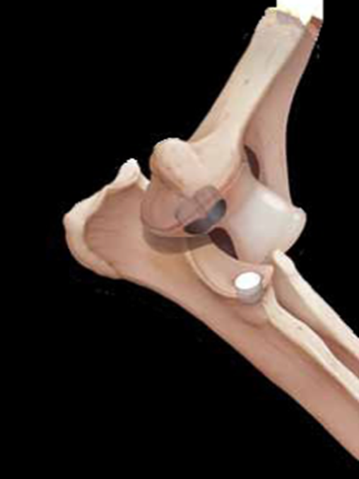 Implants in position in an elbow model